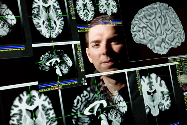Barbey applied fMRI to map and measure brain lesions' effects on intelligence.